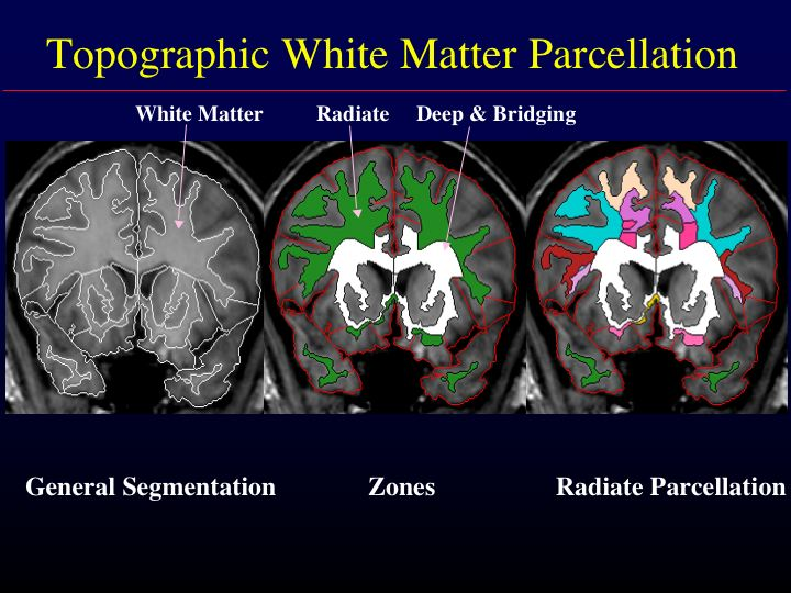 White matter parcellation: Overview