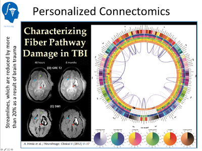 Traumatic Brain Injury (TBI): a DBP for Na-mic. The goal of the project is to develop quantitative measures for the prediction of outcome in patients with moderate to severe brain trauma. Clinical: UCLA, algorithm research: UTAH, UNC, Kitware, engineering: UCLA, Kitware, GE. Software platform for delivery to the community: 3D Slicer (this is going to happen during next year)