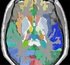 Atlas 1 with thalamic nuclei