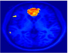 Mit fmri clustering SC 5Double.jpeg