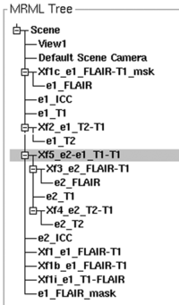 the MRML node tree shows the hierarchy of multiple transfoms